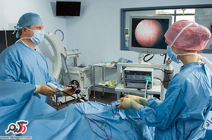 همه چیز در مورد لاپاراسکوپ و جراحی لاپاراسکوپی