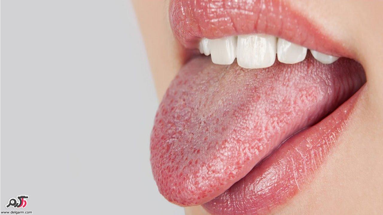 علت خشک شدن دهان چیست؟