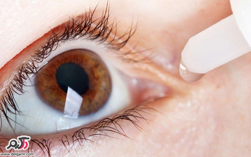 چه کسانی می توانند از جراحی لیزر اگزایمر استفاده کنند؟   در مورد عمل لیزیک چه میزان اطلاع دارید آمادگی های لازم برای این عمل چگونه اند پس از آن چه مراقبت هایی باید از دیدگانمان داشته باشیم توصیه های مهم در این زمینه کدامند؟