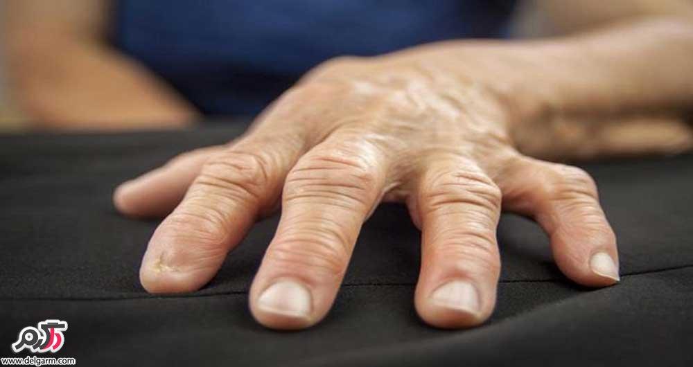 بیماری آرتریت روماتوئید چیست؟