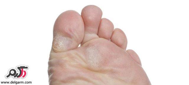 درمان مناسب پینه کف پا در منزل