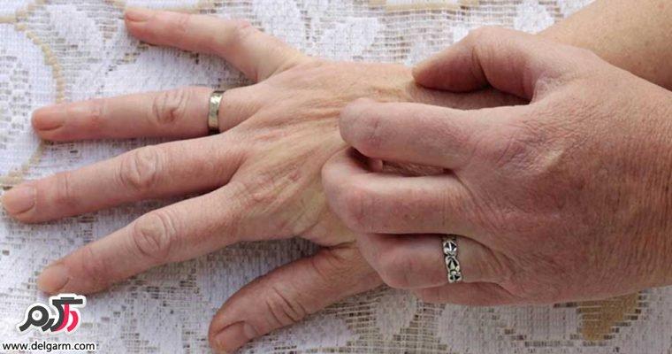 چرا پوست دچار خارش میشود؟
