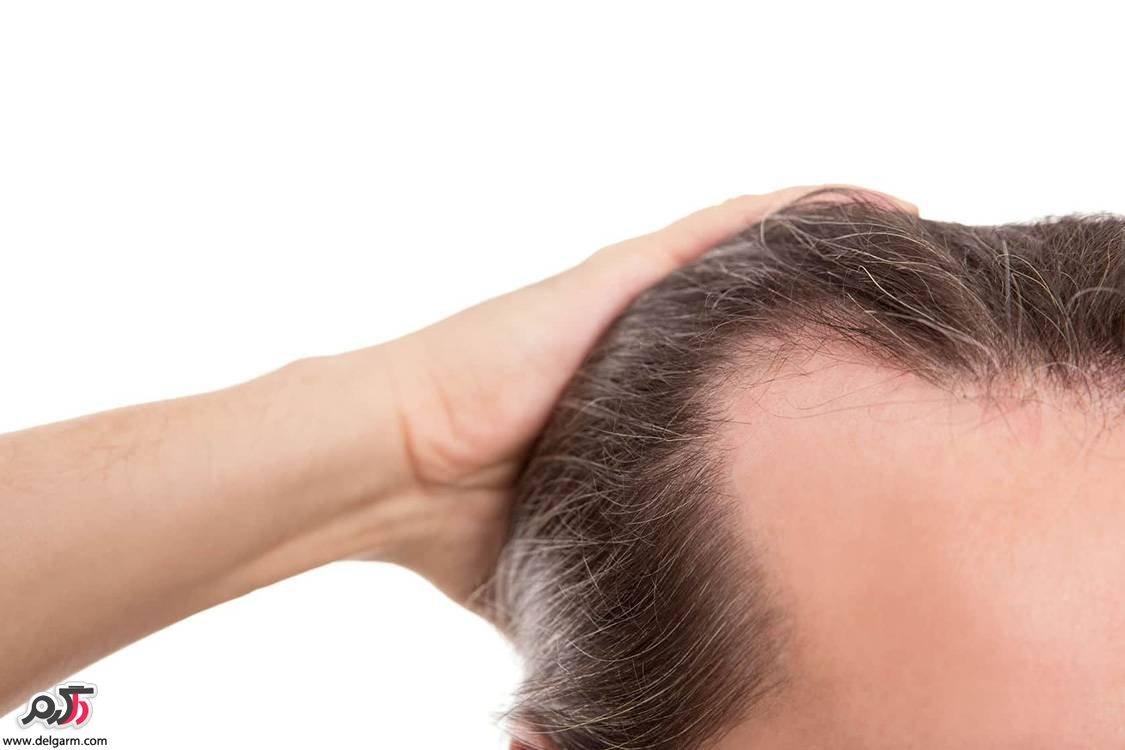 محلول و داروی ماینوکسیدیل،عوارض؛مزایا،هزینه،میزان تاثیر و نحوه مصرف برای موی سر،ریش،سبیل و …