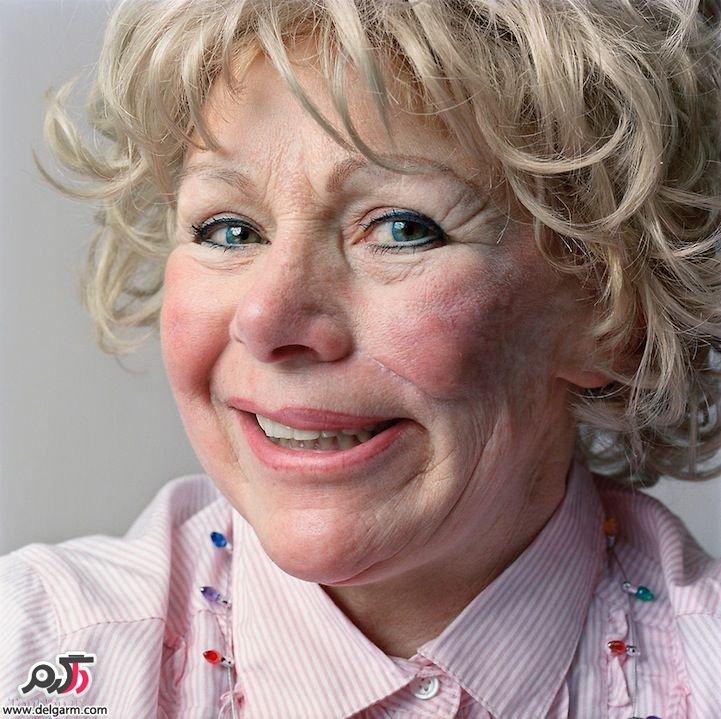 درمان فلج بل (عصب صورت) با فیزیوتراپی و حرکات اصلاحی