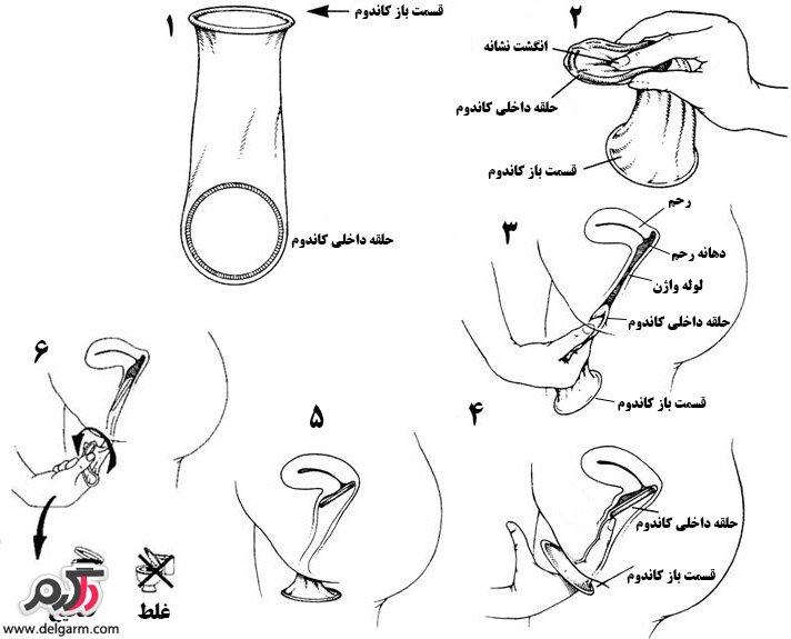کاندوم زنانه