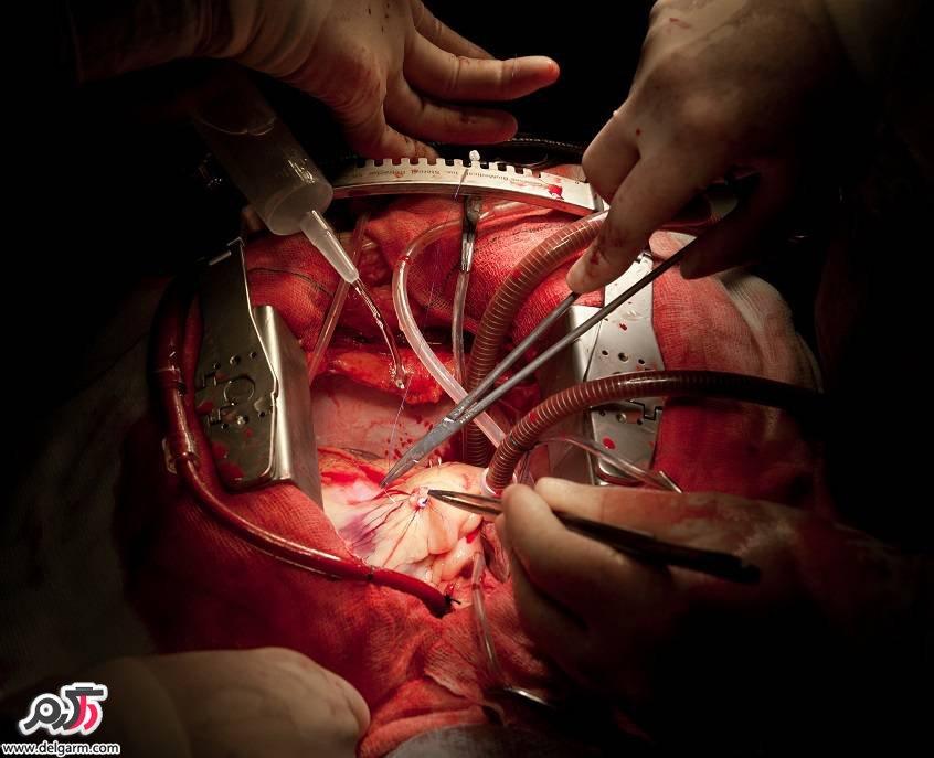 مراقبت های بعد از جراحی باز قلب