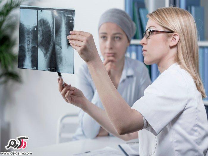 بهترین درمان متاستاز استخوانی چیست؟