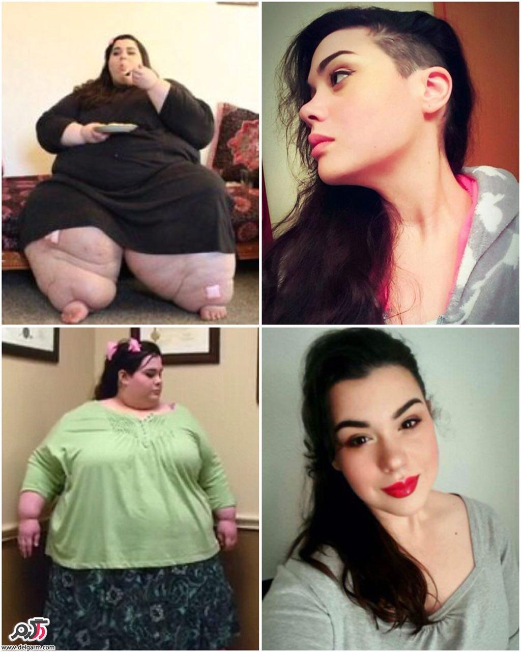 امبر رچدی با 300 کیلو وزن در عرض 3 سال بیش از 180 کیلو وزن کم کرد
