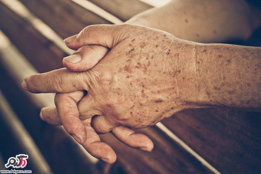 راه های مناسب برای درمان لکه های روی دست