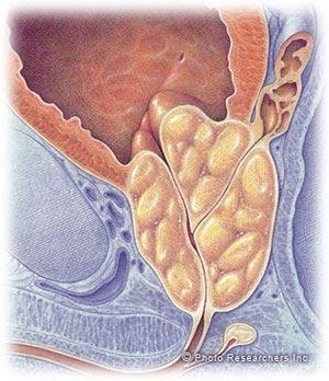 سرطان پروستات، پیشگیری