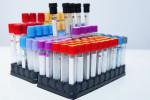 علت بالا و پایین بودن TF در آزمایش خون