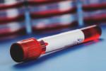 علت مثبت و منفی بودن Hb.S در آزمایش خون