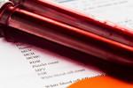 علت بالا و پایین بودن E۲ در آزمایش خون