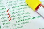 علت مثبت و منفی بودن در Mumps Ab IgG/IgM آزمایش خون