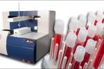 علت بالا و پایین بودن CSA در آزمایش خون