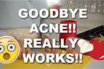 درمان آکنه پوست با ماسک گوجه و سیر