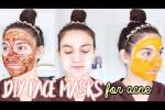 ۴ ماسک فوق العاده برای خلاص شدن از جوش های صورت