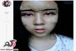 جراحی پلاستیک دختر 15 ساله برای عروسک شدن