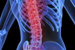 کمر درد و دیسک کمر ؛ نشانه ها و درمان دیسک کمر در دوران بارداری