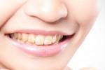 علت ایجاد لکه قهوه ای و زرد روی دندانها چیست؟