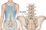 علائم و درمان التهاب مفصل خاجی خاصرهای یا ساکروایلیاک