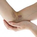 علت کبودی و خون مردگی بی دلیل روی پوست بدن چیست؟