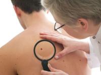 نشانه های سرطان پوست : آشنایی با انواع مختلف سرطان پوست