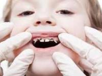 راههای کاهش پوسیدگی دندان  کودکان