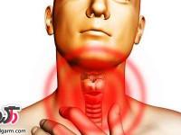 سرفه خشک و خلط داخل گلو را چگونه از بین ببریم؟