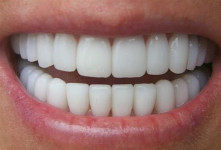بهترین متخصص کامپوزیت دندان تهران دکتر رضا خسروانی