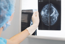 تفاوت ماموگرافی پستان با ترموگرافی سینه در چیست؟