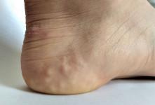علت برجستگی های سفید روی پاشنه پا ( پاپول پیزوژنیک ) چیست ؟