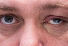 این موارد نشانه های اولیه و هشدار دهنده سرطان پلک هستند
