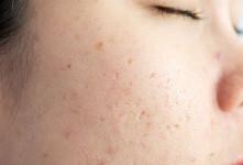 علت ایجاد حفره و منافذ باز روی پوست چیست ؟
