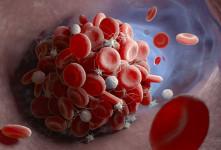 لخته خون در بدن را چگونه کنترل و یا درمان کنیم ؟