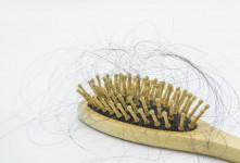 ۱۰ علت اصلی نازک شدن موی سر