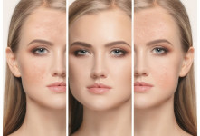 روش مراقبت از پوست ترکیبی یا پوست مختلط