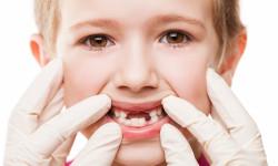 آیا دندان شیری عصب دارد؟ درمان درد دندان شیری