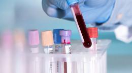 غربالگری ACs در آزمایش خون