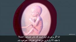 هفته هجدهم ۱۸ تا بیست و یکم ۲۱ دوران بارداری