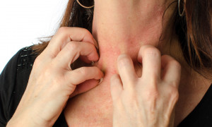 علت و درمان آلرژی و حساسیت های پوستی به پارچه های پلی استر
