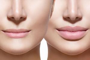 زاویه سازی صورت چگونه انجام می شود؟ + معایب زاویه سازی صورت