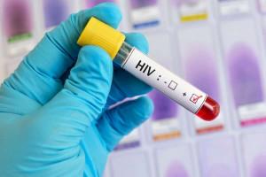 درمان ایدز: ۹ روش خانگی شگفت انگیز برای درمان ایدز