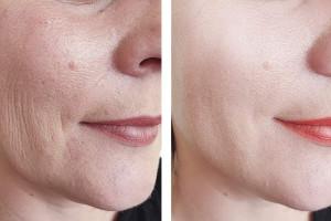 جدیدترین روش های جوانسازی پوست