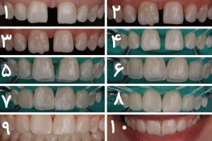 2 روش و راهحل اساسی برای بستن فاصله بین دندان ها