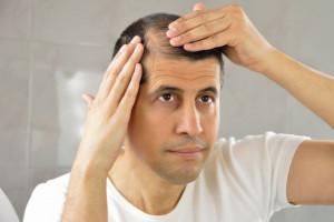 آشنایی با ترمیم مو به عنوان روش جایگزین کاشت مو