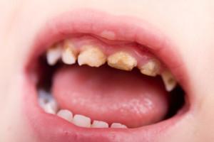 علت سیاهی دندان در کودکان چیست؟
