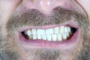 12 ویتامین لازم بدن برای سالم ماندن دندان ها