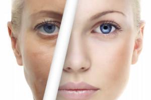 مزوژل در جوانسازی پوست فایده بسیار زیادی دارد