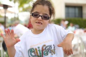 کودکان مبتلا به سندرم آپرت این نشانه ها را دارند